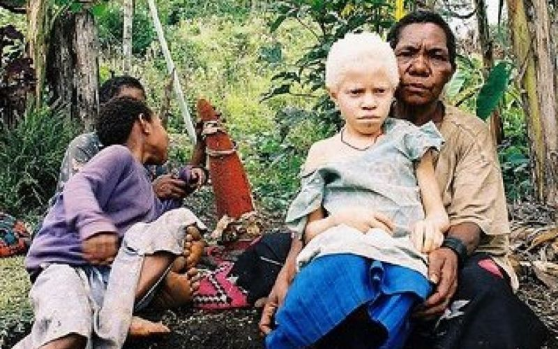 - (c) Mädchen mit Albinismus in Papua-Neuguinea / Muntuwandi in der Wikipedia auf Englisch