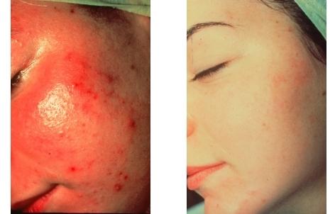 Foto 3 von Medizinisch-Kosmetische Praxis Gesa Rethmeier in Stuttgart