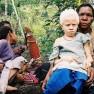 Mädchen mit Albinismus in Papua-Neuguinea / Muntuwandi in der Wikipedia auf Englisch